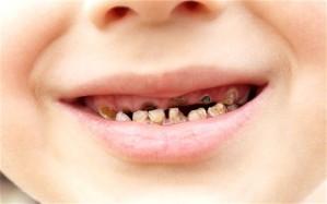 teeth_2330929b
